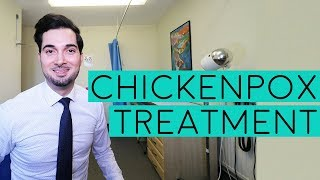 Chickenpox Treatment | Treatment For Chickenpox | Chickenpox Symptoms | Signs Of Chickenpox | 2018