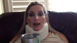 ACDF C5-C6 Post-Op Day 3 & Incision Reveal