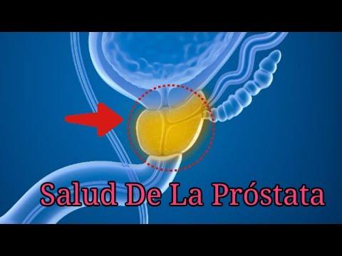 BPH y cáncer de próstata
