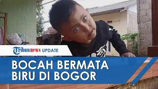 Kisah Bocah 3 Tahun Miliki Bola Mata Biru di Bogor, Orangtua Sebut sang Anak Bisa Melihat Hal Gaib