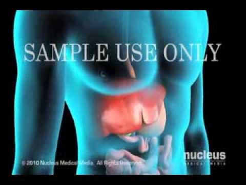 Вирусные гепатиты для медсестер