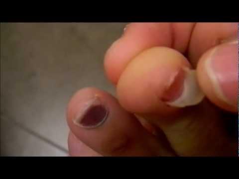 Come trattare un fungo i posti intimi