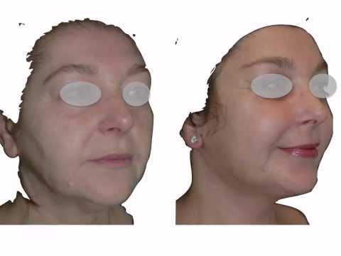 Botox para sa wrinkles sa paligid ng mga mata
