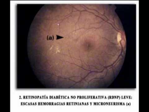 Encefalopatia resztkowa, zespół nadciśnienia wewnątrzczaszkowego