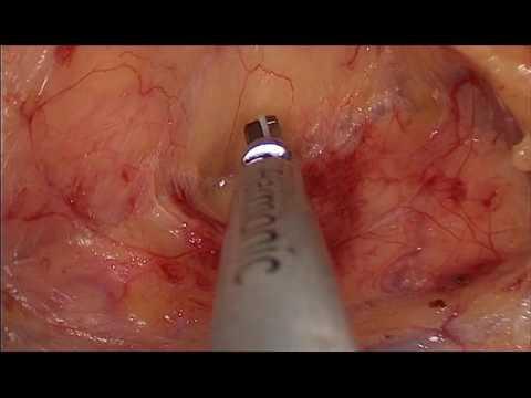 Detox intestinal australia