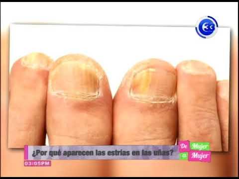 La orina contra el hongo sobre las uñas