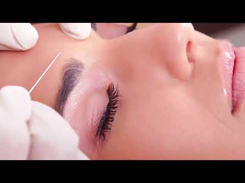 The Benefits of Fillers | Capron Park Dental | Botox and Juvederm Treatments