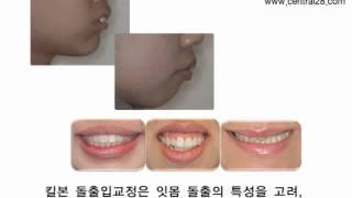 킬본 돌출입교정 2편- 킬본돌출입교정 소개