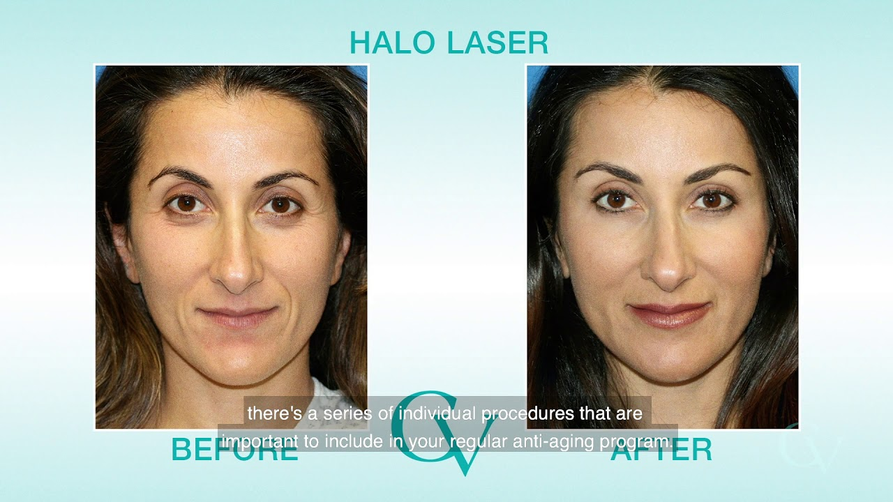 Non-Surgical Procedures, Carmel Valley Facial Plastic Surgery