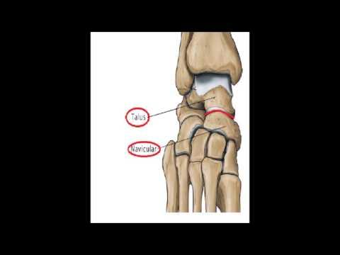 Allergische Arthritis des Knies bei Kindern