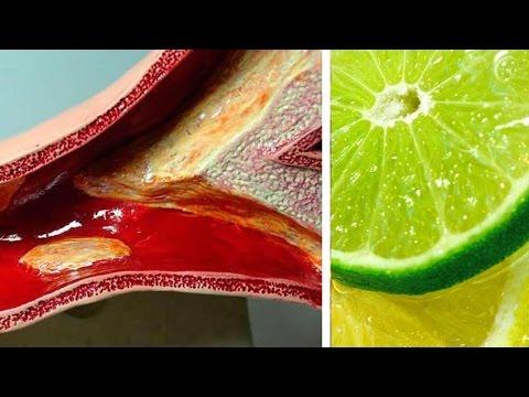 Método indio de tratamiento de yodo hipertensión