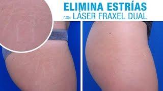 eliminar estrias laser barcelona