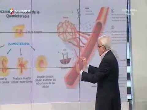 Opiniones prostatitis crónica
