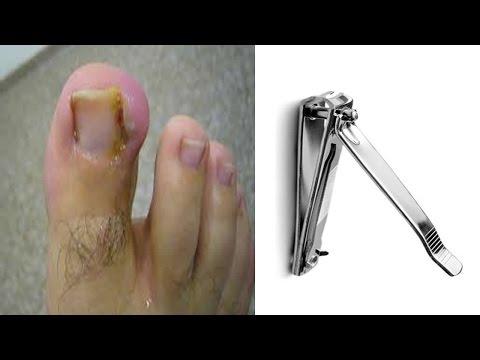 El hongo de los pie la peladura de la piel