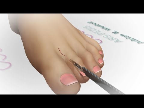 Die Valgusdeformation des zweiten Fingers des Beines