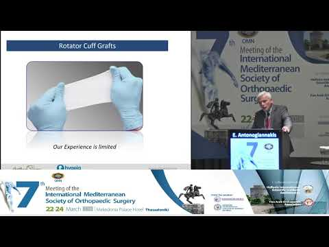 E Antonogiannakis - Massive RC tears, treatment algorithm role of inspace balloon