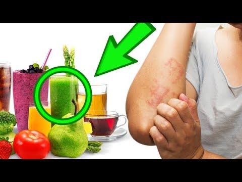 АЛЛЕРГИЯ у детей и взрослых, на коже и лице? 5 напитков от причины, лечение аллергии!