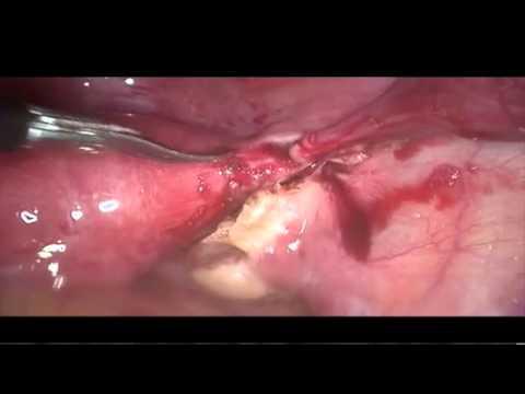 Tratamiento para lombrices oxiuros