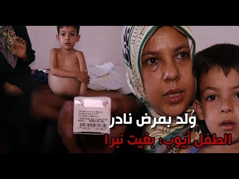 العرب اليوم - شاهد :  الطفل أيوب يستغيث بشأن العلاج من مرضه النادر