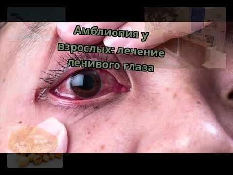Операции по восстановлению зрения в саранске