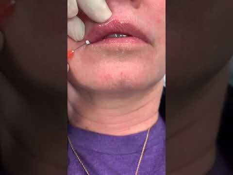Lip Thread Lift Part 2