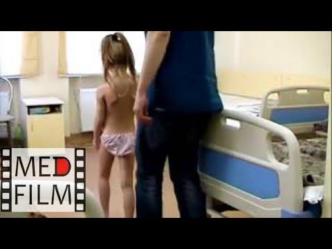 Дерматомиозит у детей (осмотр) © dermatomyositis in children