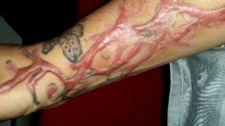 Tattoo-removal procedures leave clients scarred for life