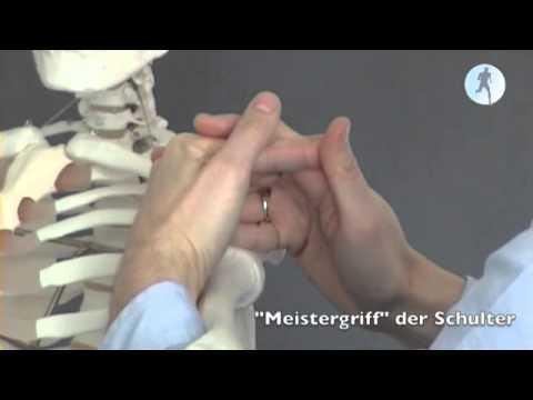 Behandlung von Arthrose der Hüftoperation
