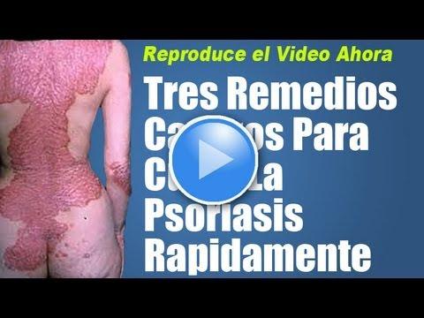 La psoriasis la fase inicial los síntomas sobre la cabeza