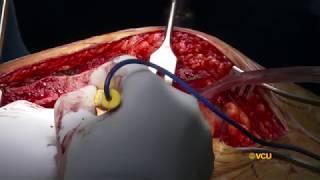 Left Internal Mammary  Artery Take Down