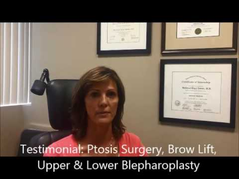 Patient Testimonial – Carrie – Upper & Lower Blepharoplasty, Brow Lift, & Ptosis Surgery