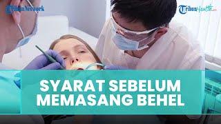 Syarat-syarat sebelum Lakukan Pemasangan Behel, Begini Penjelasan dari Dokter Gigi