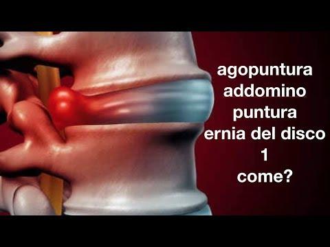 Esercizio hip trattamento di artrite