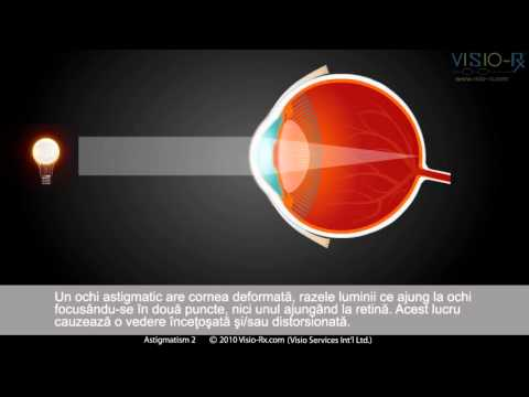 Metoda de tratare a vederii