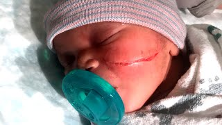 Newborn Gets Gash on Face From C-Section Scalpel