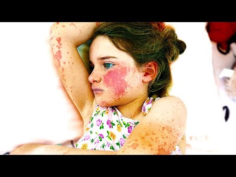 WE FOUND HER WITH MACULOPAPULAR RASH (SHOCKING)