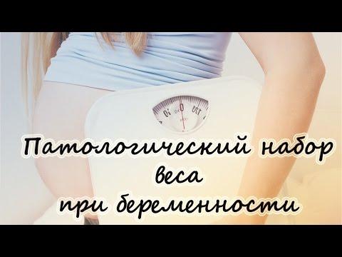 Как ходить чтобы не похудеть