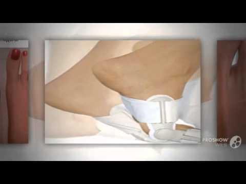 Удаление шишек на пальцах ног в москве