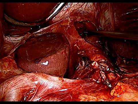 Laparoskopowa gastrektomia D2