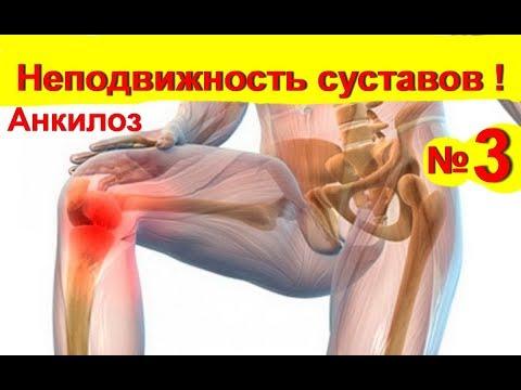 Суставы лечение. Неподвижность -анкилоз суставов -скованные неподвижные и болят № 3