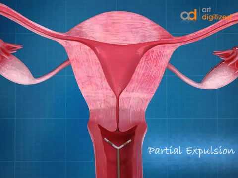 เส้นเลือดขอดกระดูกเชิงกรานในสตรีที่ได้รับการรักษา
