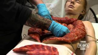 The Knick Season 2: Body Shop  Heroin Addict Autopsy (Cinemax)