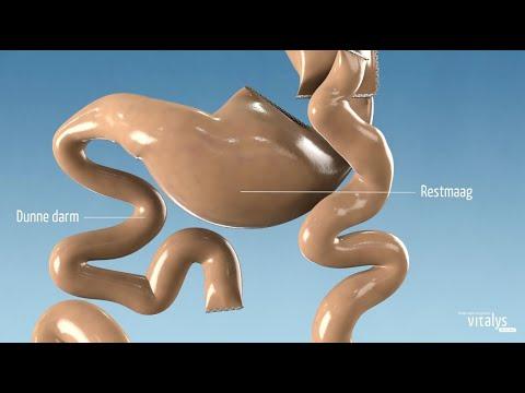 Carrousel video: Eén van de meest uitgevoerde maagverkleinende operaties is de gastric bypass. Bij een gastric bypass wordt de maag kleiner gemaakt. Ook wordt een stuk van de darm omgeleid. Hiervan komt de naam bypass (=omleiding).   Vitalys is één van de grootste klinieken voor maagverkleinende operaties. Per jaar behandelen we zo'n 1.300 patiënten. Naast een operatie volgen alle patiënten een intensief leefstijlveranderend behandeltraject.