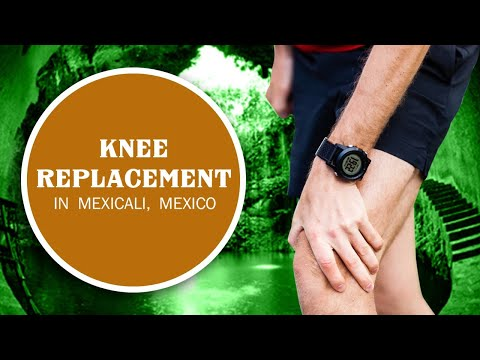 Suitable-Package-for-Knee-Replacement-in-Mexicali-Mexico