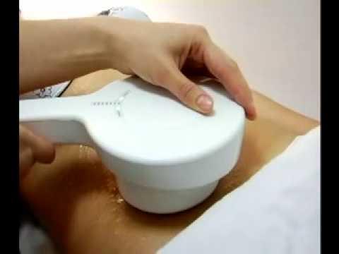 Le changement de la forme de la poitrine du plastique