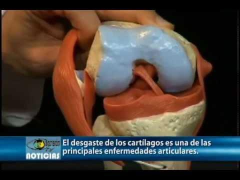 Protrusión de la columna cervical que hacer
