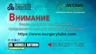 Фаллопротез – малоинвазивная операция - Презентация Доктора Габриэле Антонини