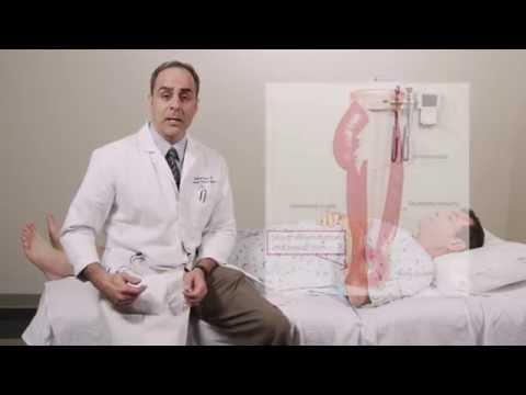 A hónalj artrózisa és a kezelés
