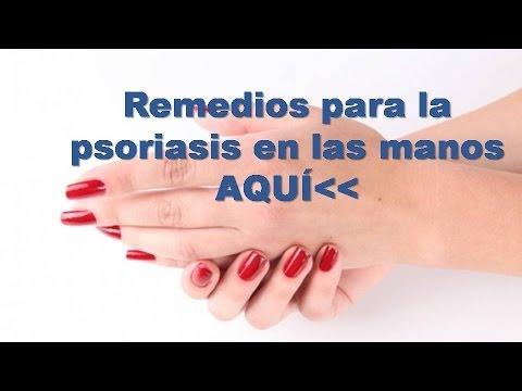 Las enfermedades de la piel de las manos la eccema