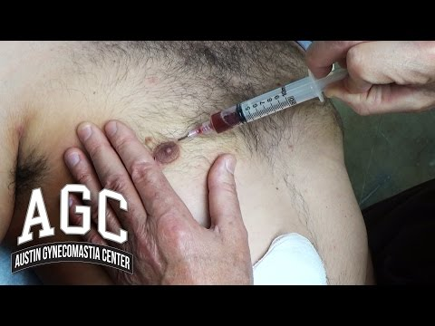 Educational Video: Seroma Formation After Gynecomastia Treatment